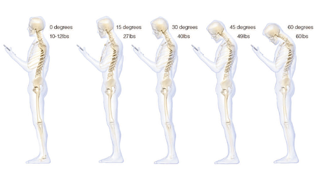 Texting can lead to back pain